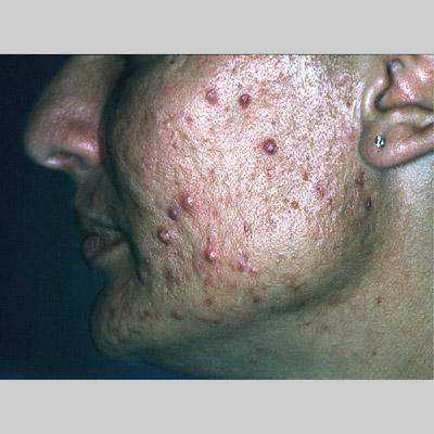 Image #433: acne