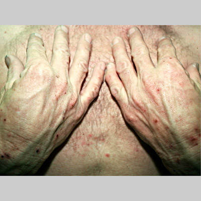 eczema diagnosis