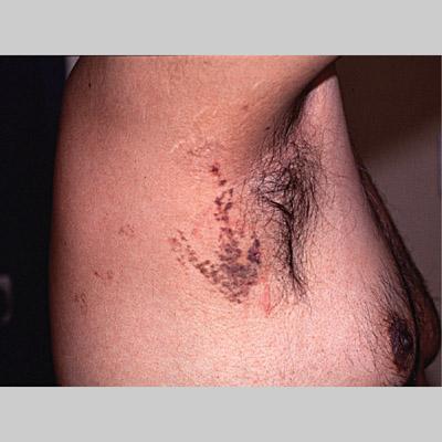congenital melanocytic nevus cancer risk