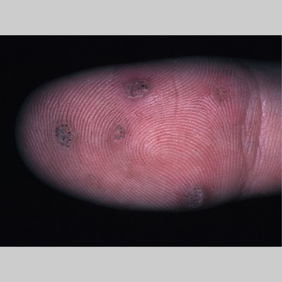 common wart. warts, common