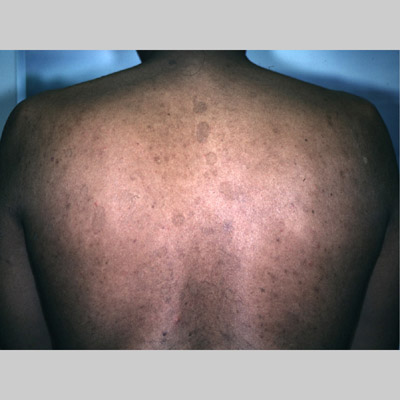 PITYRIASIS VERSICOLOR - British Association of...