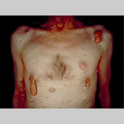 Image #24: neurofibromatosis