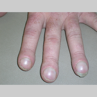 how to fix nail clubbing