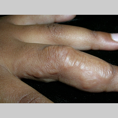 intralesional steroid injection capillary hemangioma