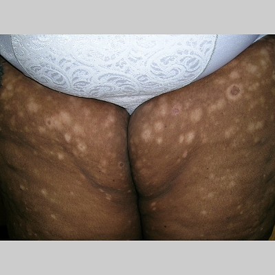 high potency steroid cream for psoriasis