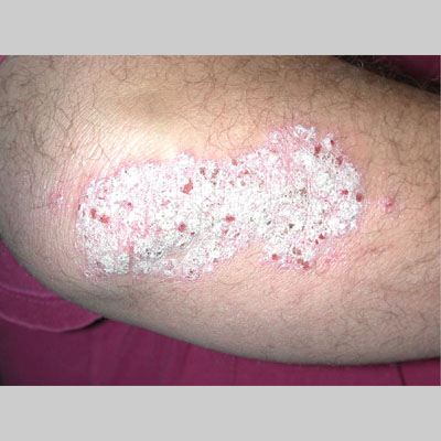 Review possible medical complications related to Genital psoriasis: 3