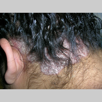 Plaque psoriasis routinely affects the scalp 3