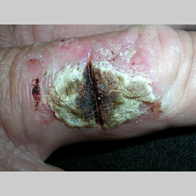 Squamous Cell Carcinoma On Fingers