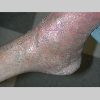Nummular Eczema - American Osteopathic College of ...