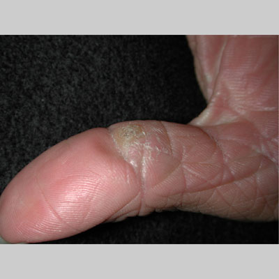 common wart on hand. common wart. common wart.
